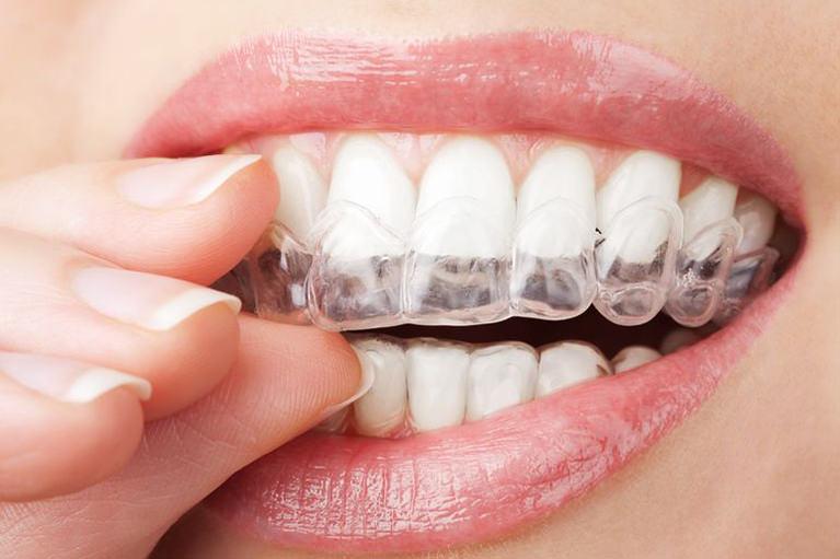 歯へのダメージが少ないホームホワイトニングがおすすめです